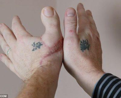 Implantan el dedo pulgar del pie en la mano de un joven británico