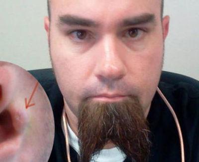 Un americano se implanta auriculares en las orejas para escuchar música